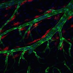 Lymphatic brain cell image