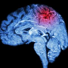 Venom protein could prevent brain damage caused by stroke